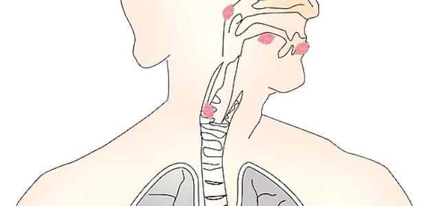 keelkanker